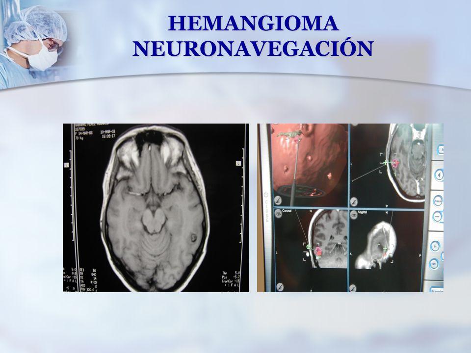 HEMANGIOMA NEURONAVEGACIÓN
