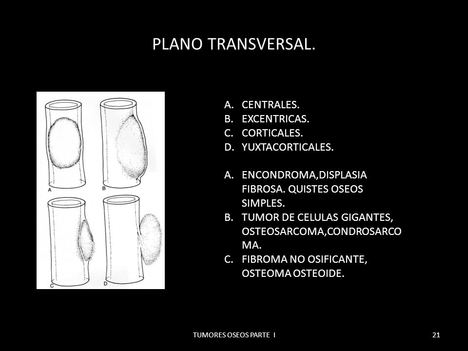 PLANO TRANSVERSAL. CENTRALES. EXCENTRICAS. CORTICALES.