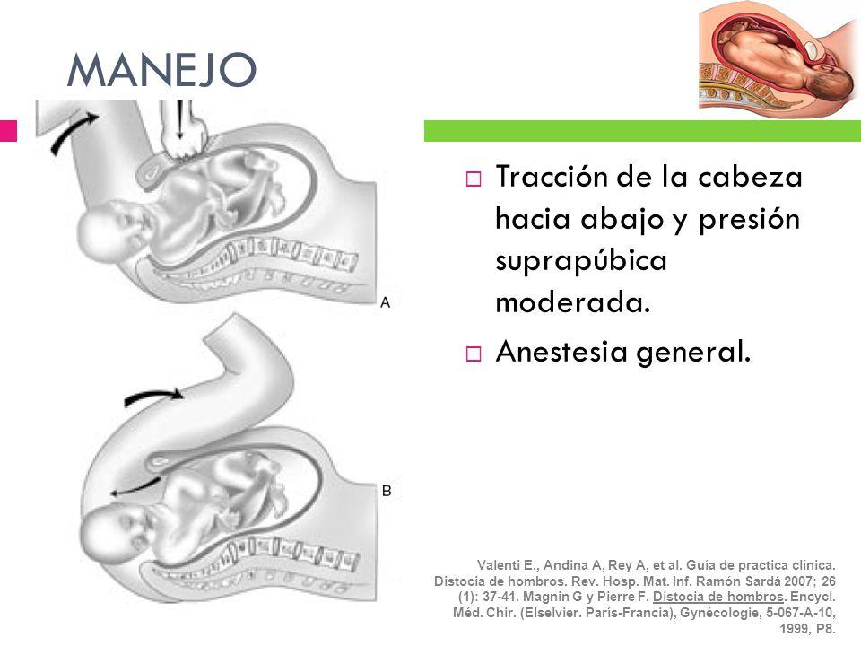 MANEJOTracción de la cabeza hacia abajo y presión suprapúbica moderada. Anestesia general.