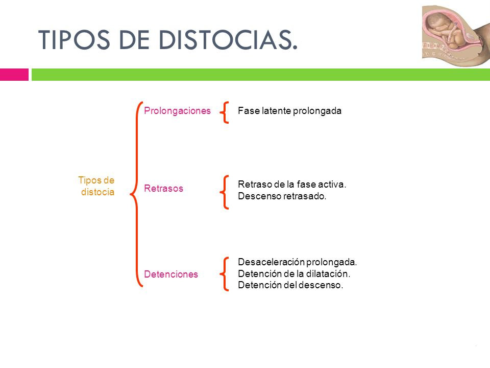 TIPOS DE DISTOCIAS. Prolongaciones Fase latente prolongada Tipos de