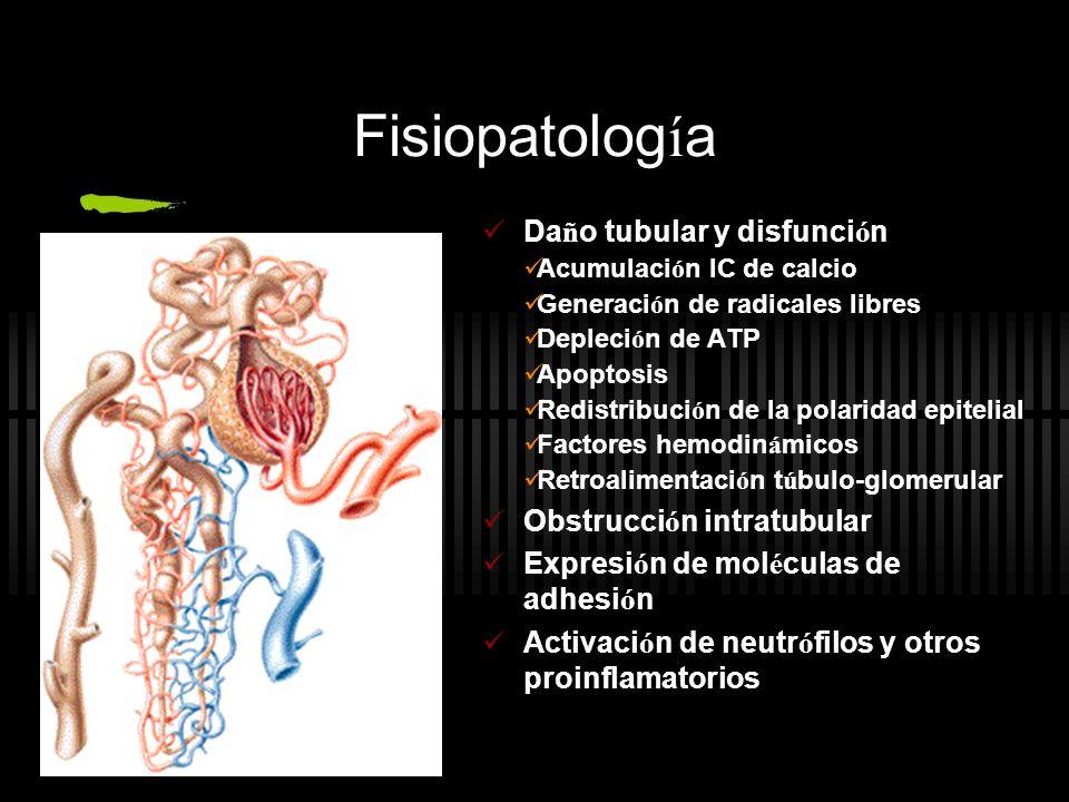 Fisiopatología Daño tubular y disfunción Obstrucción intratubular