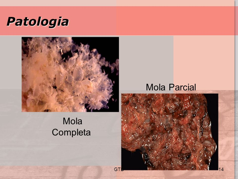 Patologia Mola Parcial Mola Completa GTD