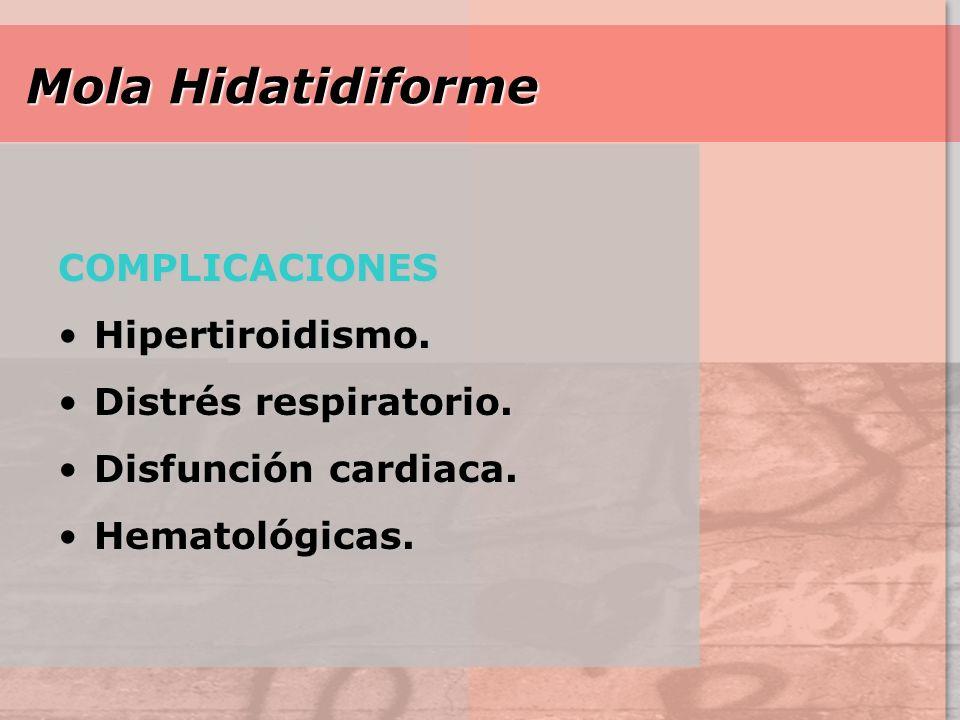 Mola Hidatidiforme COMPLICACIONES Hipertiroidismo.