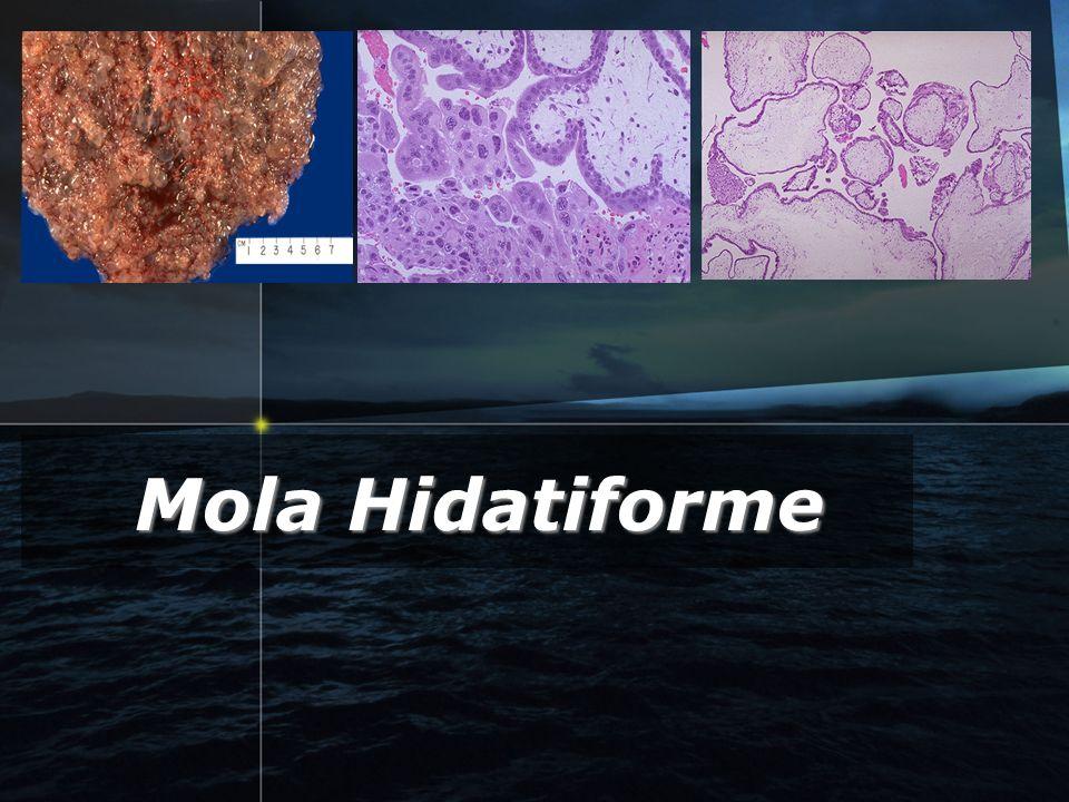 Mola Hidatiforme GTD