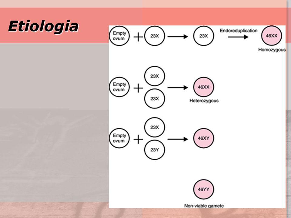 Etiologia GTD