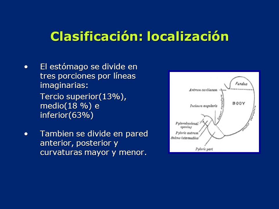 Clasificación: localización