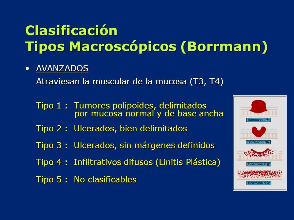 Clasificación Tipos Macroscópicos (Borrmann)