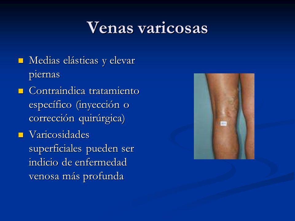 Venas varicosas Medias elásticas y elevar piernas