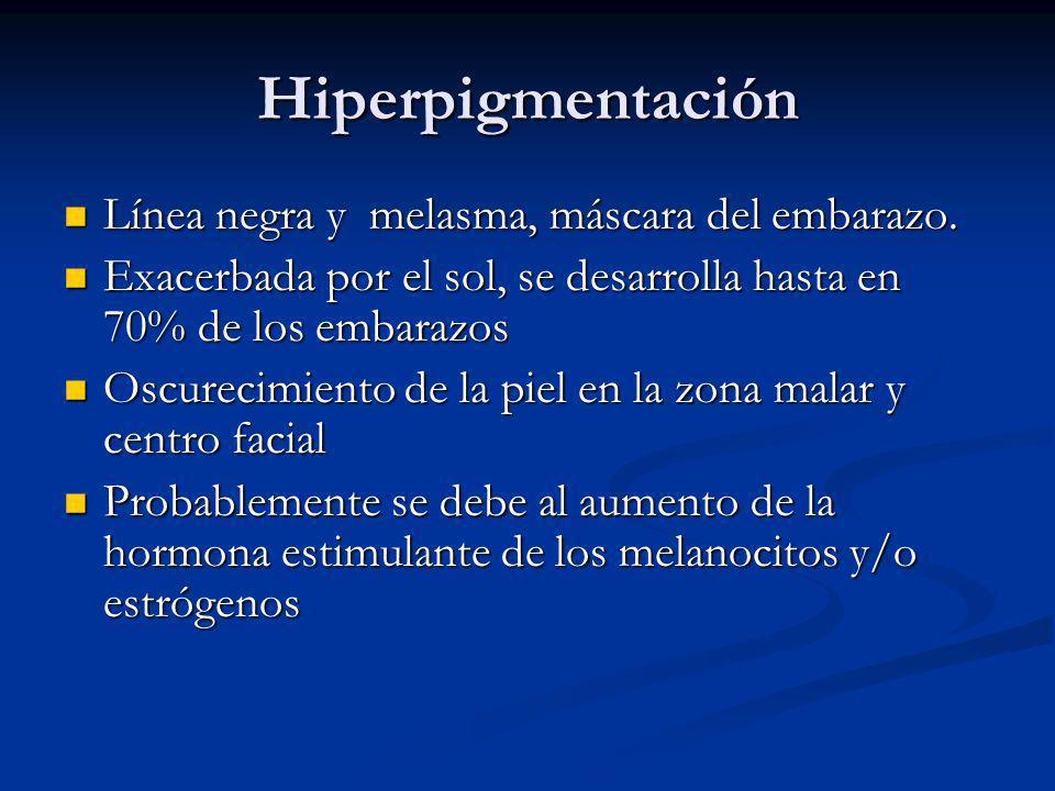 Hiperpigmentación Línea negra y melasma, máscara del embarazo.