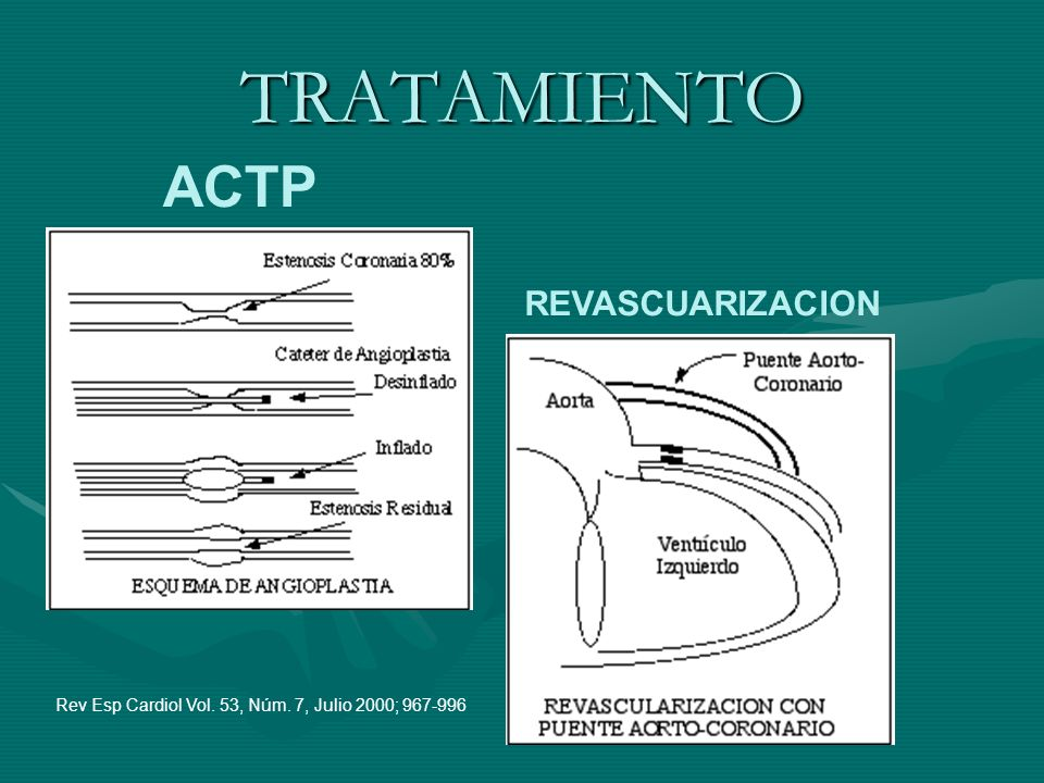 TRATAMIENTO ACTP REVASCUARIZACION