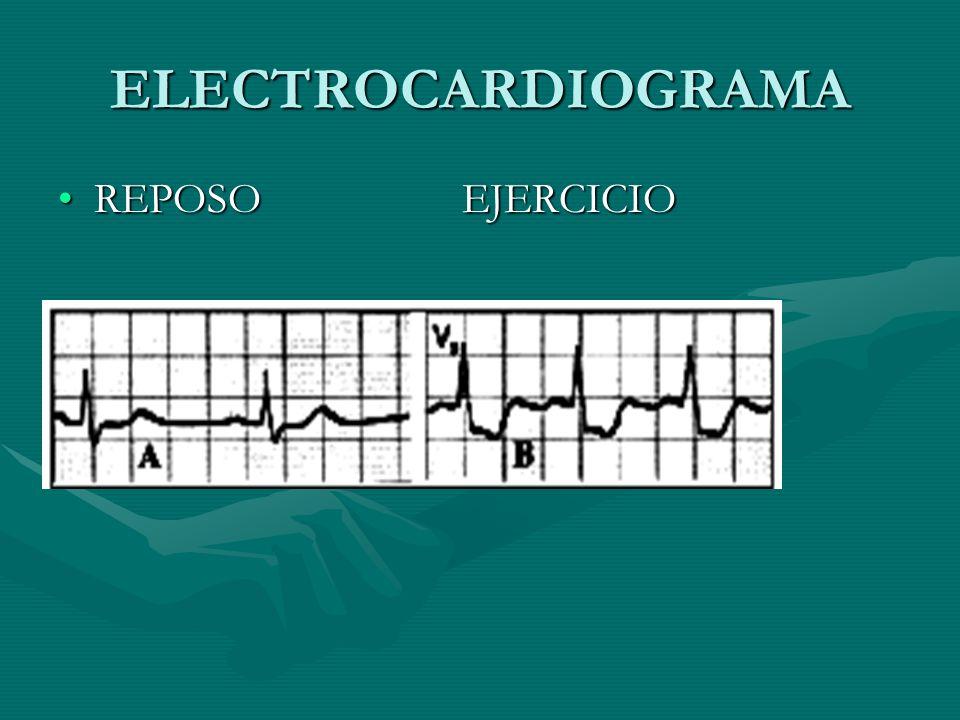 ELECTROCARDIOGRAMA REPOSO EJERCICIO