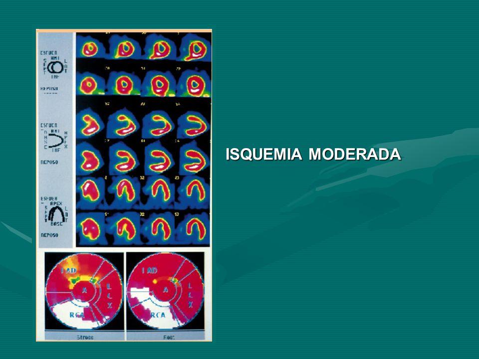 ISQUEMIA MODERADA