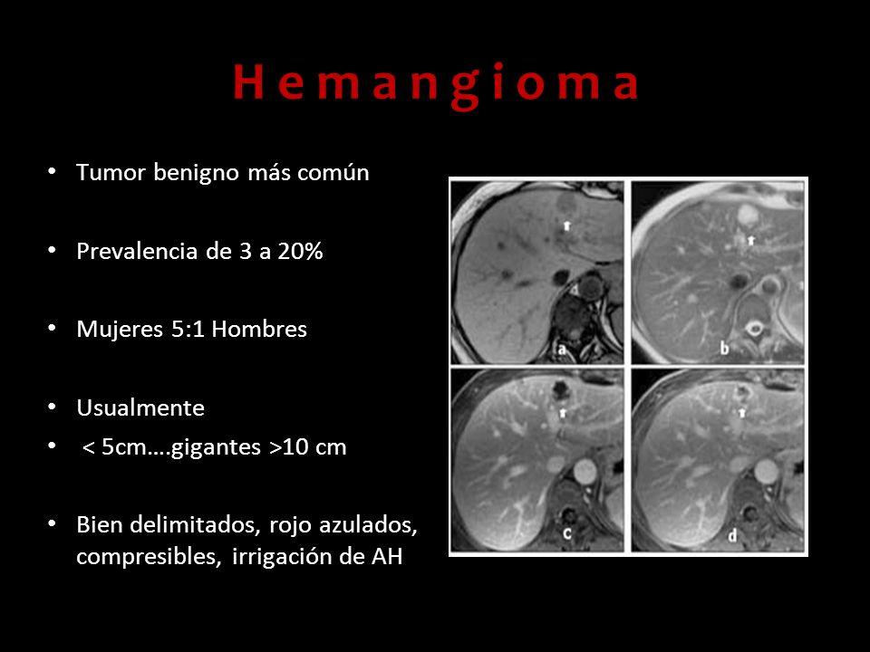 H e m a n g i o m a Tumor benigno más común Prevalencia de 3 a 20%