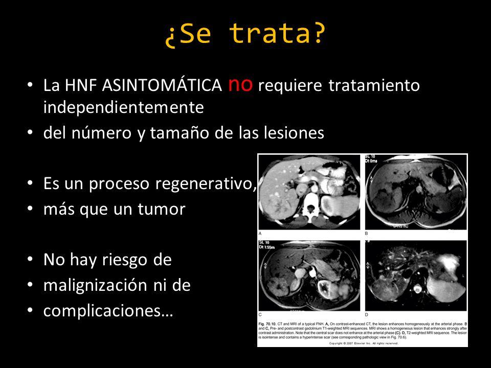 ¿Se trata La HNF ASINTOMÁTICA no requiere tratamiento independientemente. del número y tamaño de las lesiones.