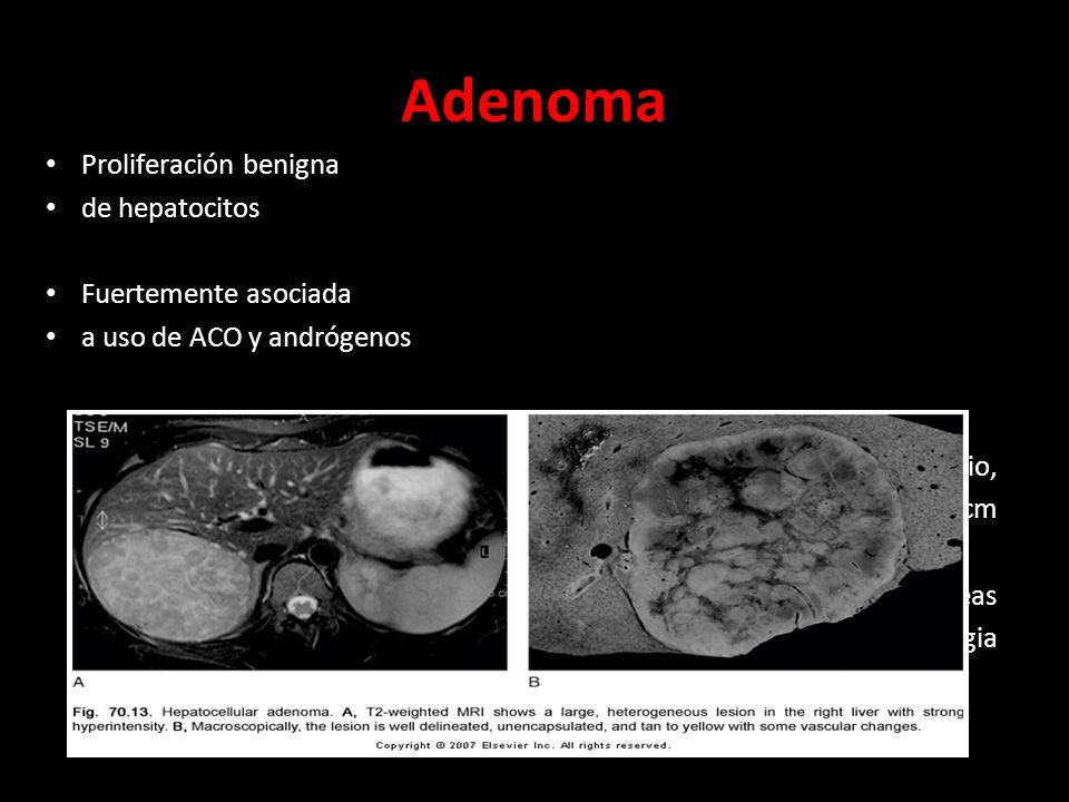 Adenoma Proliferación benigna de hepatocitos Fuertemente asociada