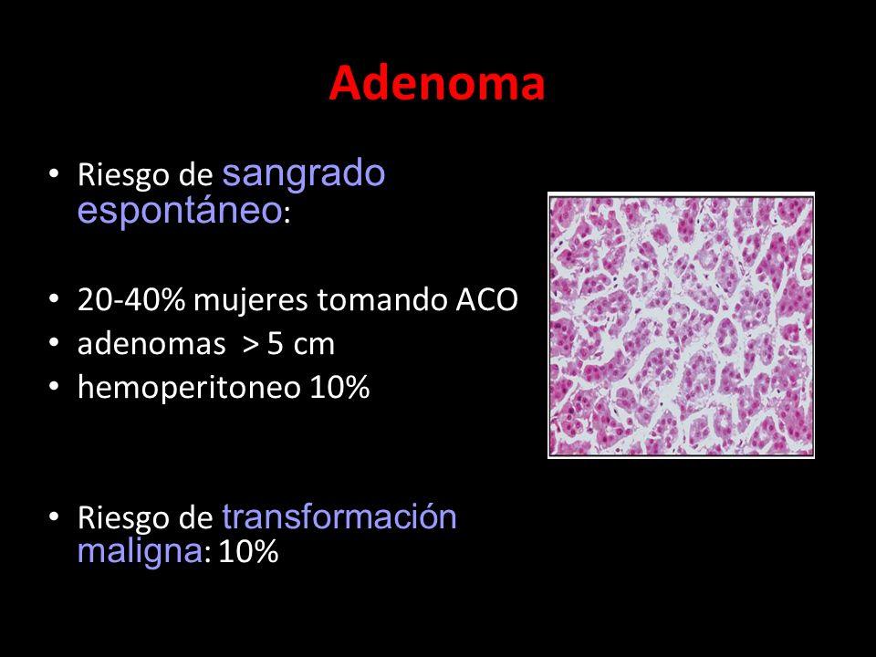 Adenoma Riesgo de sangrado espontáneo: 20-40% mujeres tomando ACO
