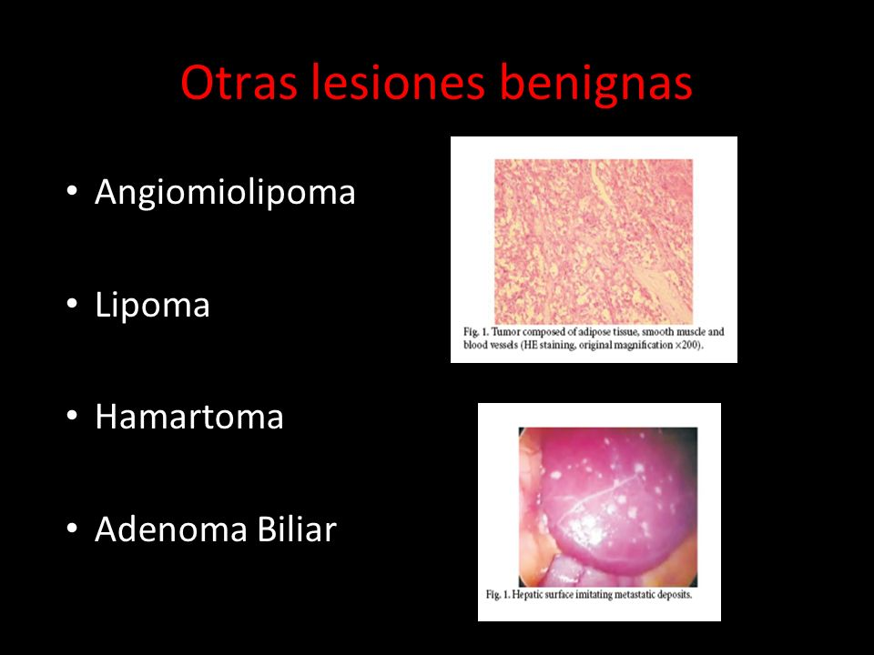 Otras lesiones benignas