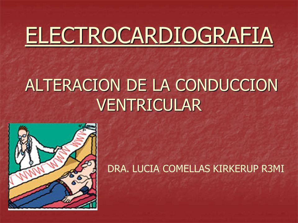 ELECTROCARDIOGRAFIA ALTERACION DE LA CONDUCCION VENTRICULAR
