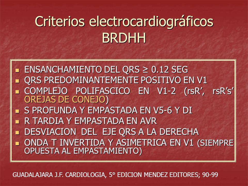 Criterios electrocardiográficos BRDHH