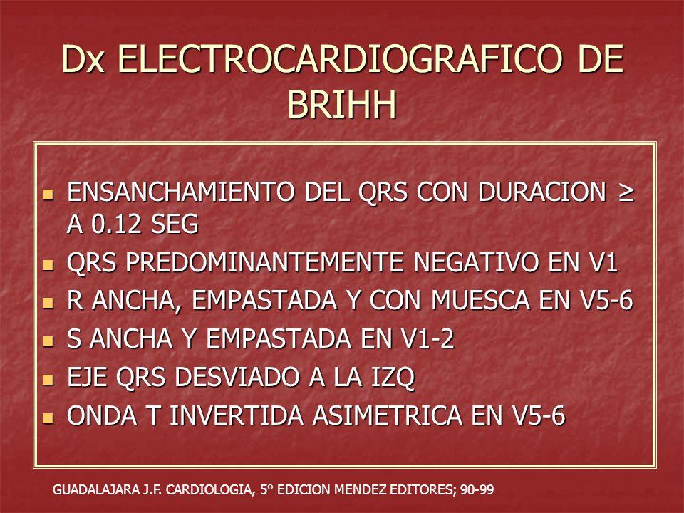 Dx ELECTROCARDIOGRAFICO DE BRIHH