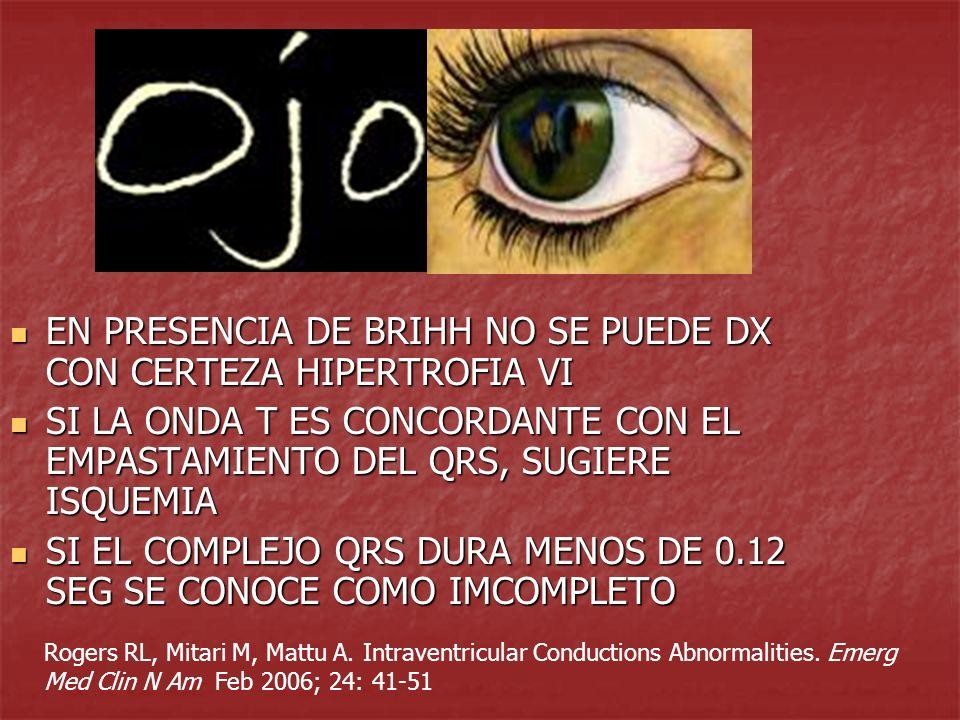 EN PRESENCIA DE BRIHH NO SE PUEDE DX CON CERTEZA HIPERTROFIA VI