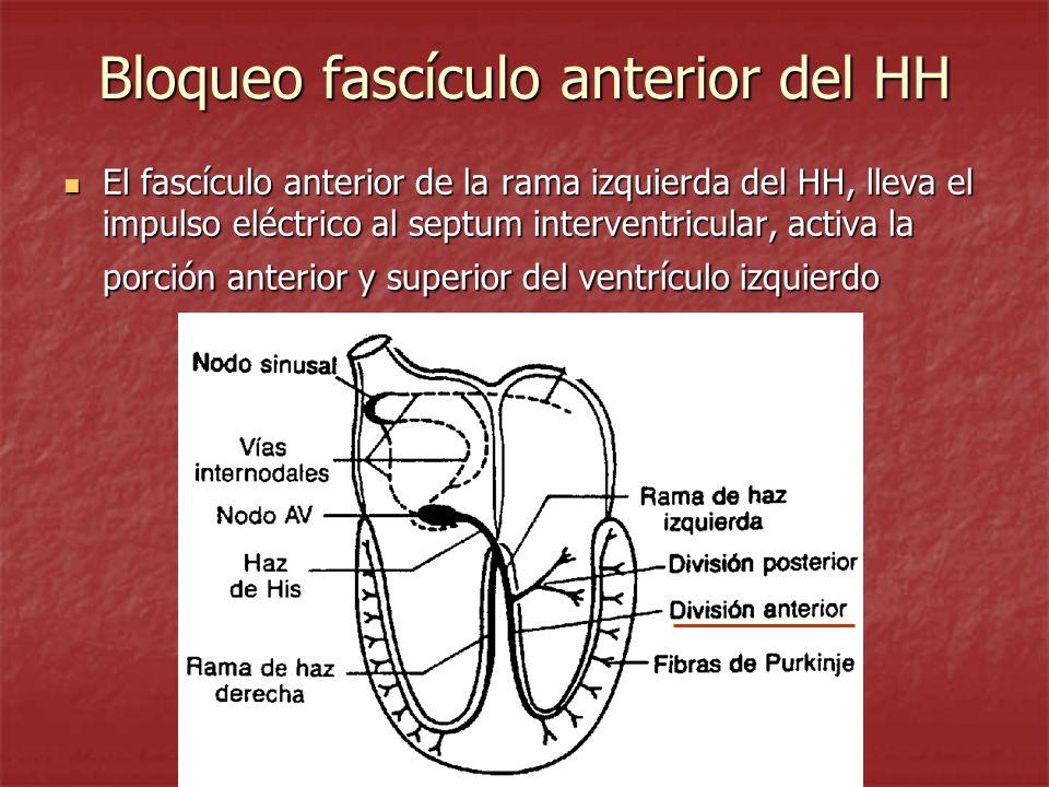 Bloqueo fascículo anterior del HH