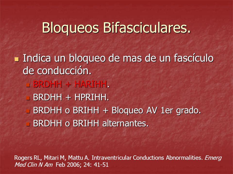 Bloqueos Bifasciculares.