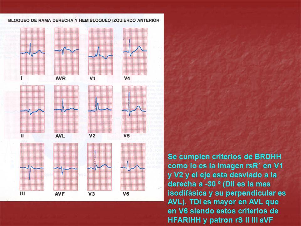 Se cumplen criterios de BRDHH como lo es la imagen rsR´ en V1 y V2 y el eje esta desviado a la derecha a -30 º (DII es la mas isodifásica y su perpendicular es AVL).