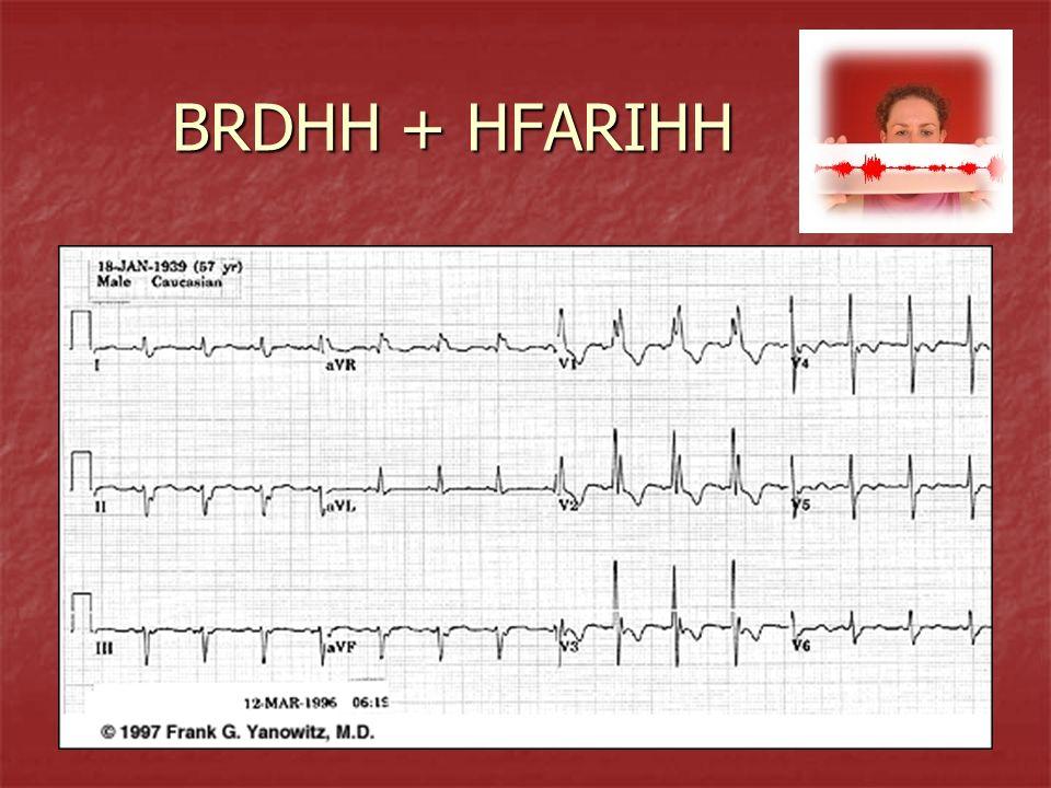 BRDHH + HFARIHH