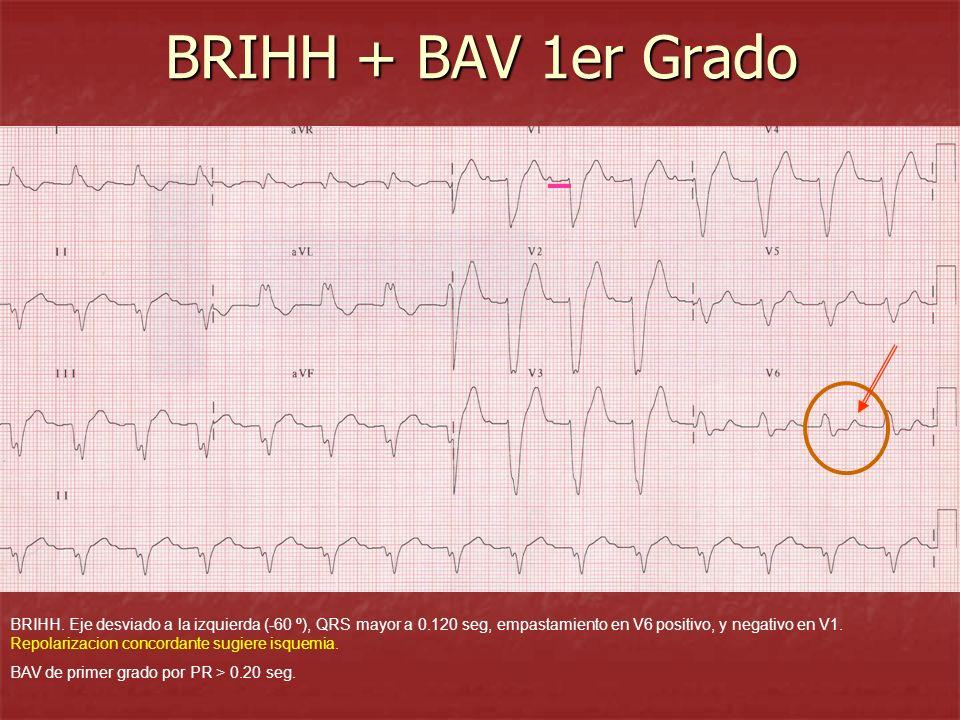 BRIHH + BAV 1er Grado