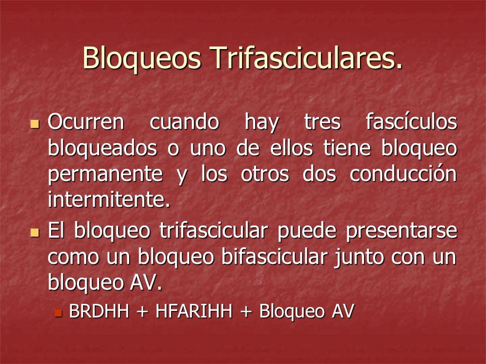 Bloqueos Trifasciculares.