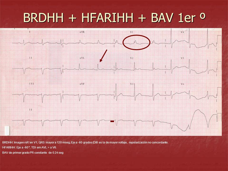 BRDHH + HFARIHH + BAV 1er º