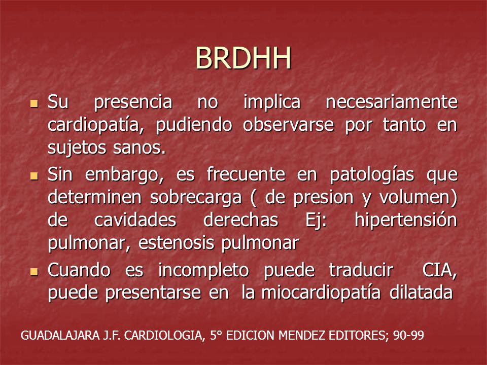 BRDHH Su presencia no implica necesariamente cardiopatía, pudiendo observarse por tanto en sujetos sanos.