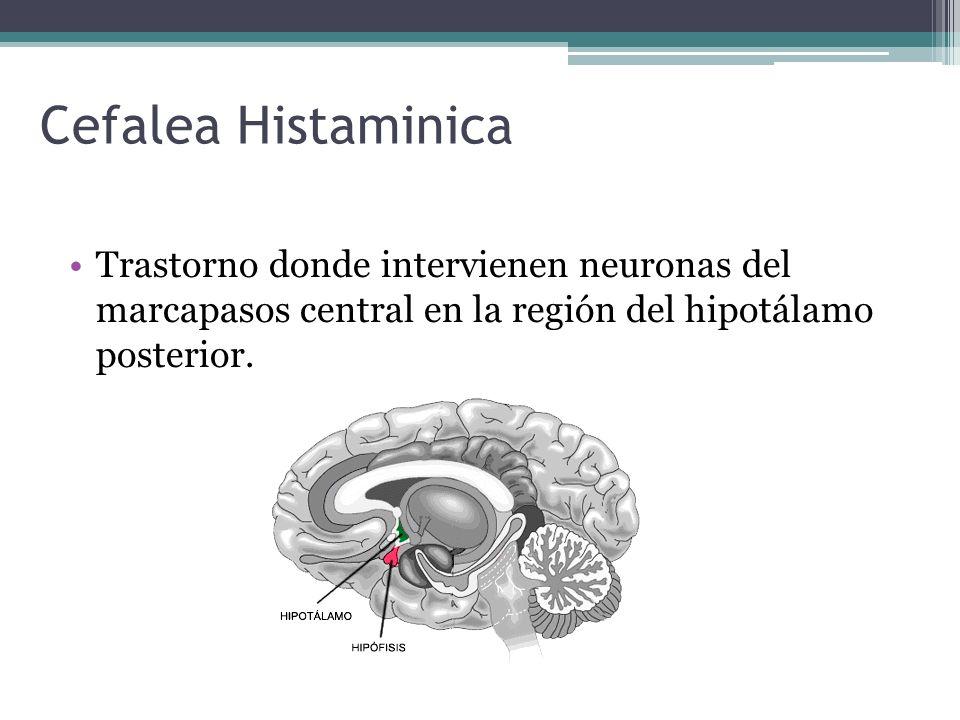 Cefalea HistaminicaTrastorno donde intervienen neuronas del marcapasos central en la región del hipotálamo posterior.