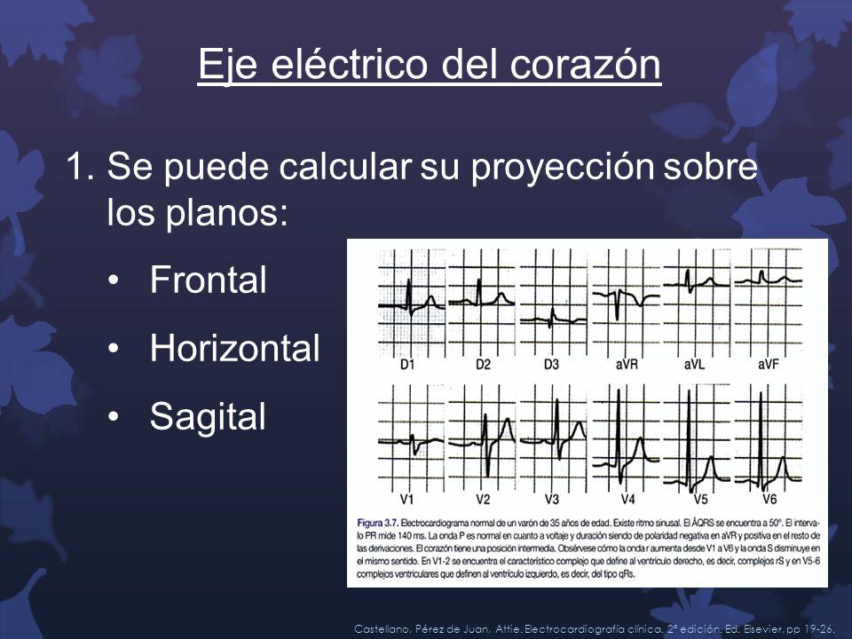 Eje eléctrico del corazón