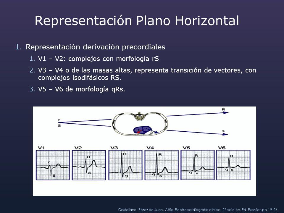 Representación Plano Horizontal