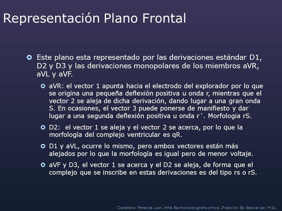 Representación Plano Frontal