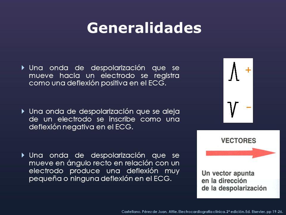 GeneralidadesUna onda de despolarización que se mueve hacia un electrodo se registra como una deflexión positiva en el ECG.