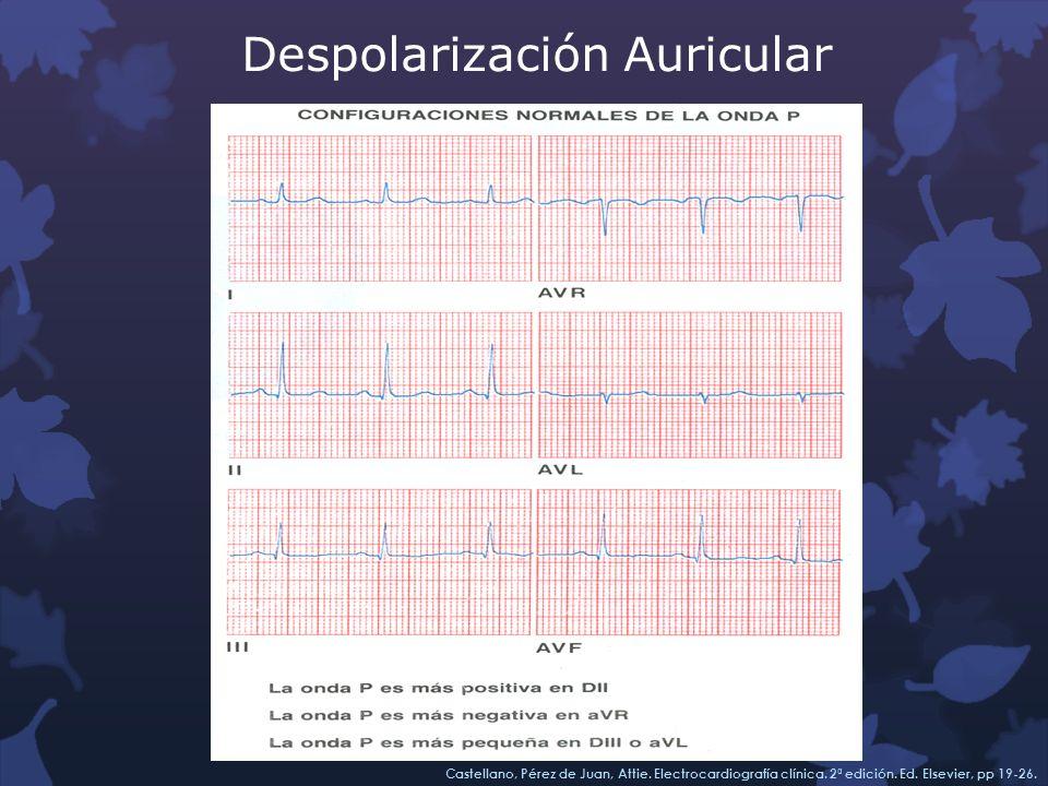 Despolarización Auricular