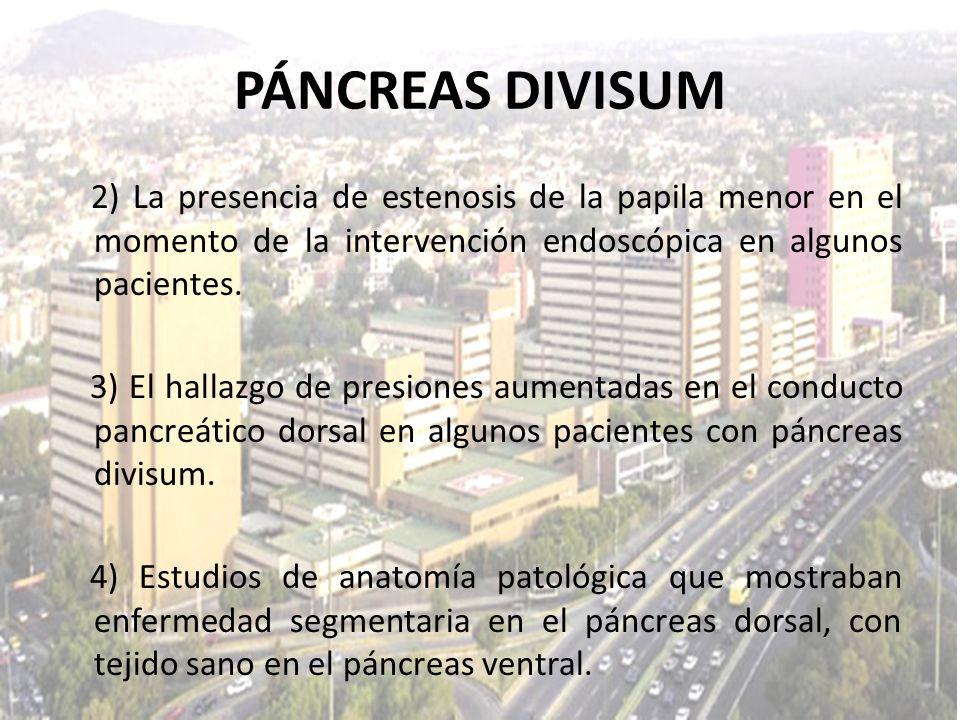 PÁNCREAS DIVISUM2) La presencia de estenosis de la papila menor en el momento de la intervención endoscópica en algunos pacientes.
