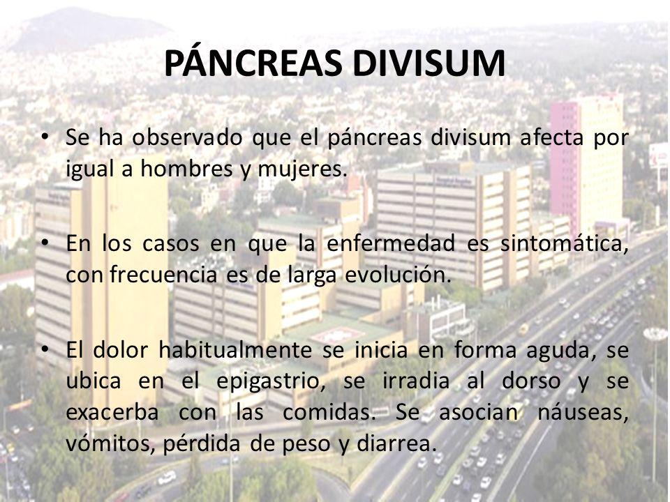 PÁNCREAS DIVISUMSe ha observado que el páncreas divisum afecta por igual a hombres y mujeres.