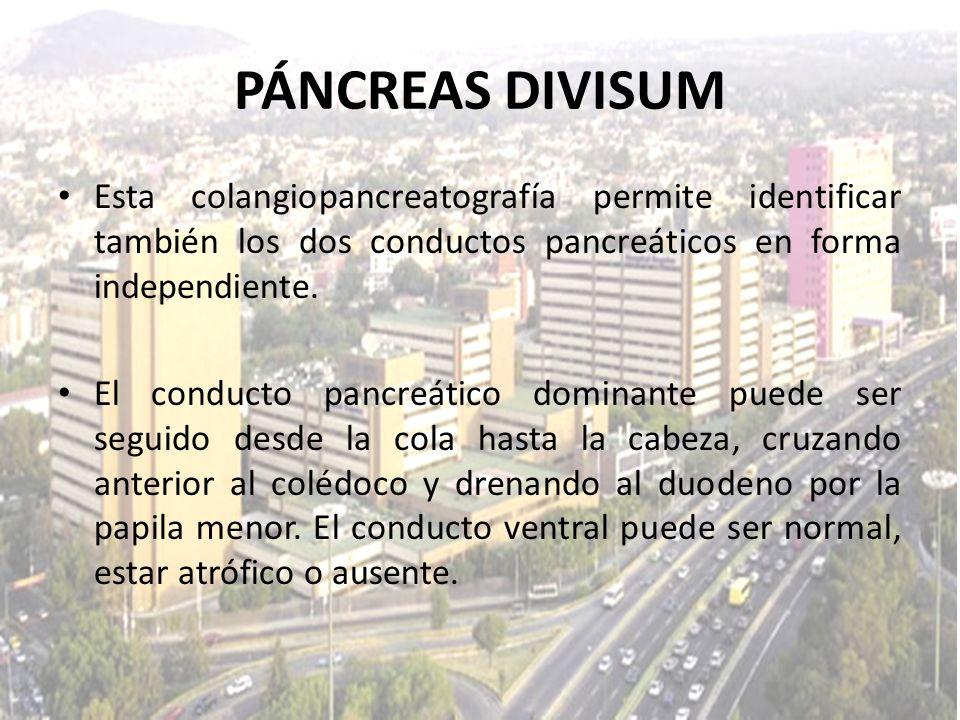 PÁNCREAS DIVISUMEsta colangiopancreatografía permite identificar también los dos conductos pancreáticos en forma independiente.