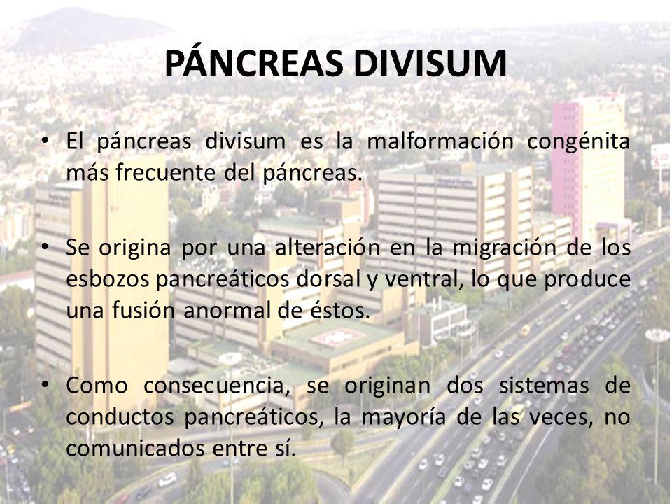 PÁNCREAS DIVISUMEl páncreas divisum es la malformación congénita más frecuente del páncreas.
