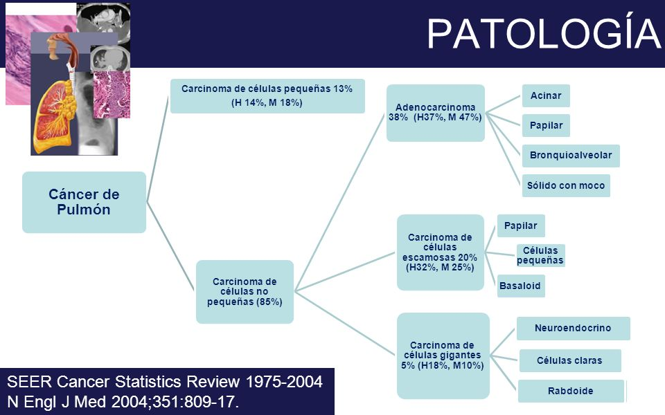 PATOLOGÍA SEER Cancer Statistics Review