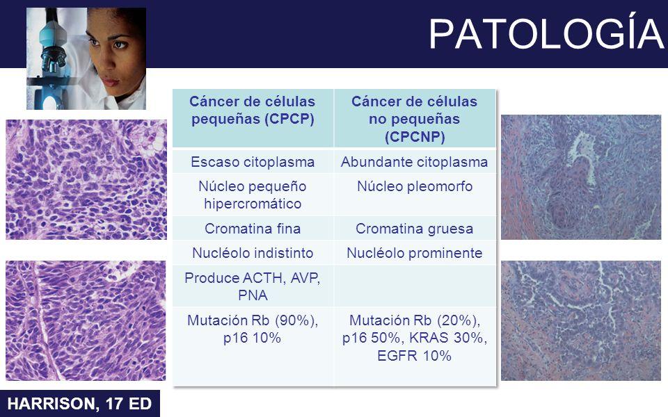 PATOLOGÍA HARRISON, 17 ED Cáncer de células pequeñas (CPCP)