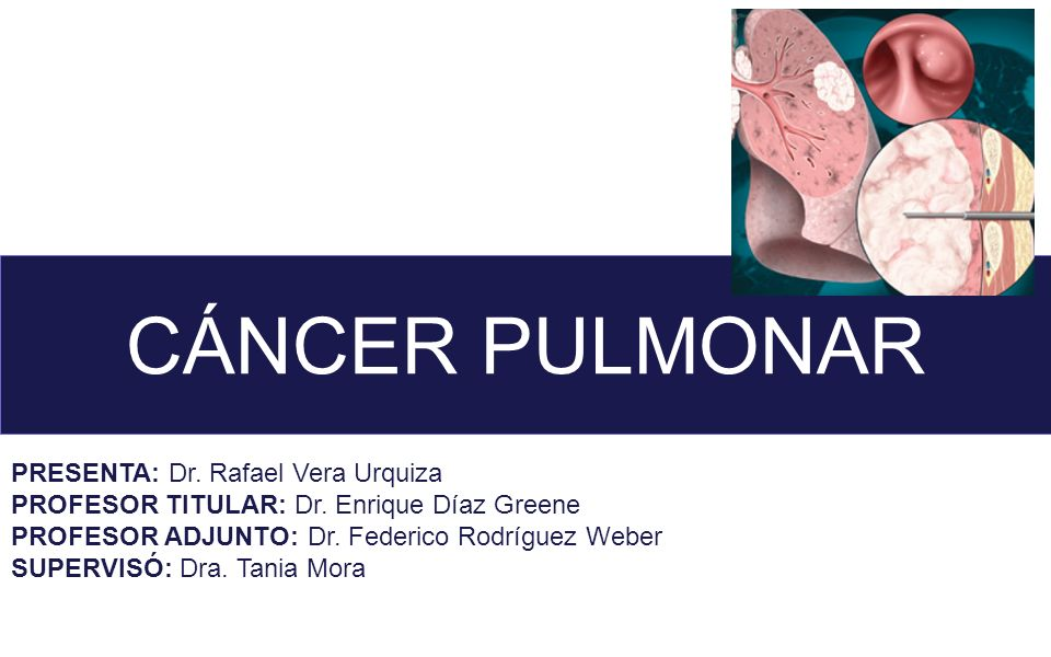 CÁNCER PULMONAR PRESENTA: Dr. Rafael Vera Urquiza