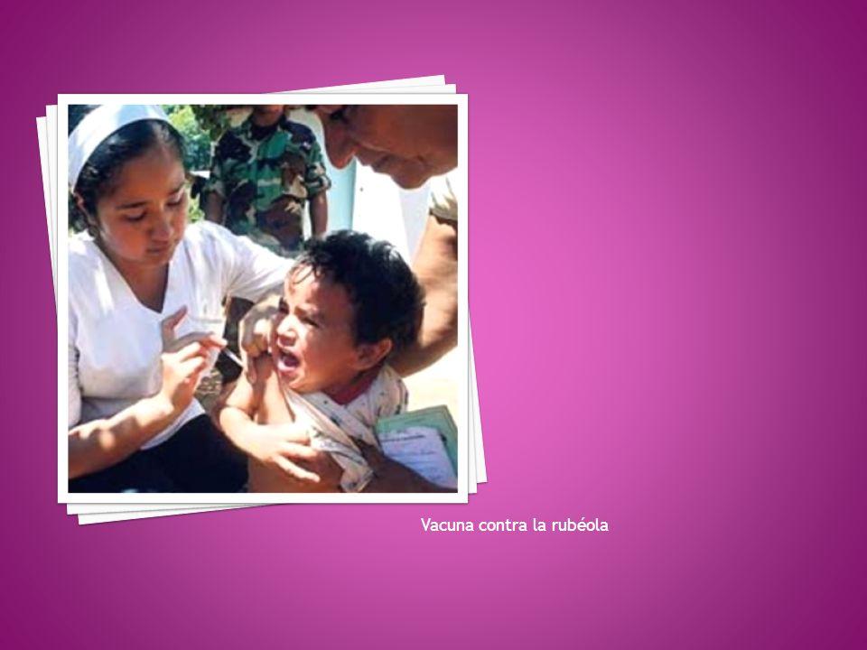 Vacuna contra la rubéola