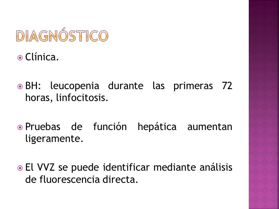 diagnóstico Clínica. BH: leucopenia durante las primeras 72 horas, linfocitosis. Pruebas de función hepática aumentan ligeramente.
