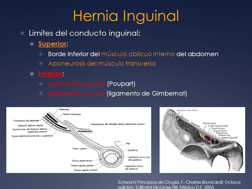 Hernia Inguinal Limites del conducto inguinal: Superior: Inferior: