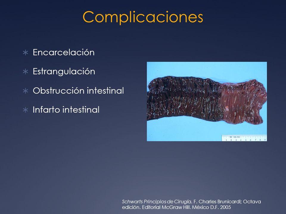 Complicaciones Encarcelación Estrangulación Obstrucción intestinal